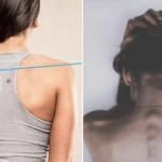 唔理高低膊易致痛症 簡單一招幫你減輕徵狀